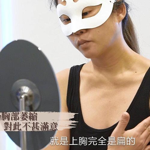 【預告】生完小孩上胸完全扁平隆乳能改善?