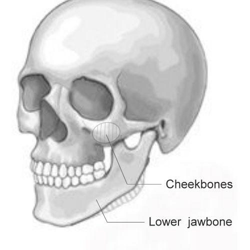 磨骨手術效果如何?能改善臉型嗎?磨骨手術完整說明