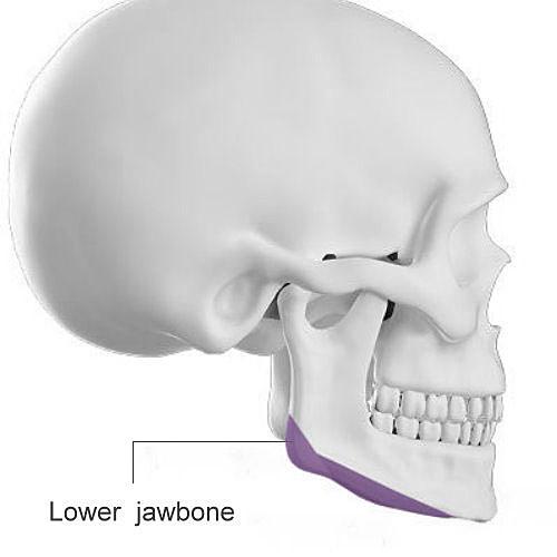 下顎骨磨骨手術