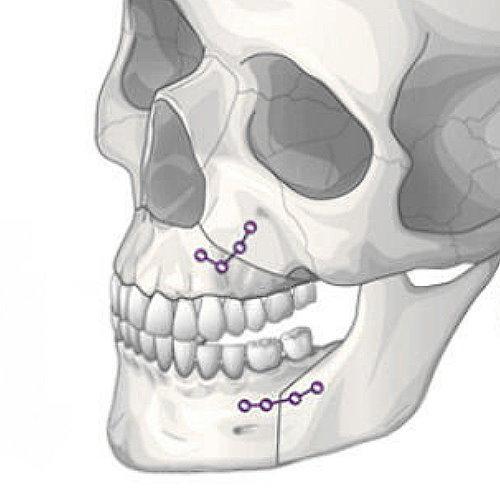 正顎手術效果如何?能改善臉型嗎?正顎手術完整說明