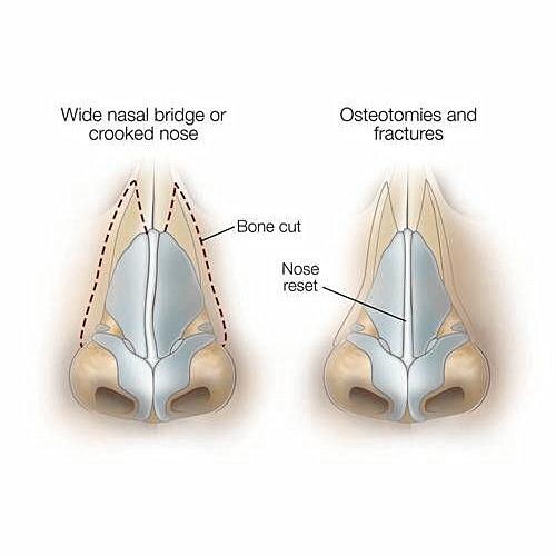 鼻中膈延長及鼻中膈彎曲手術