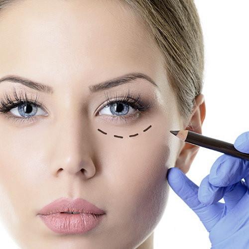 客製化隱痕複合式眼袋手術(含周圍)