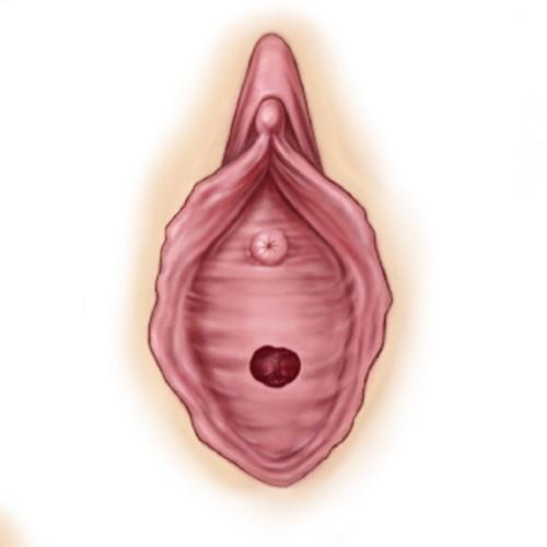 處女膜修復重建手術 女婦產科專科醫師執刀