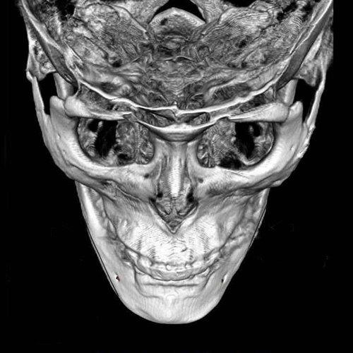 削骨失敗神救援,二次削骨手術的精準度