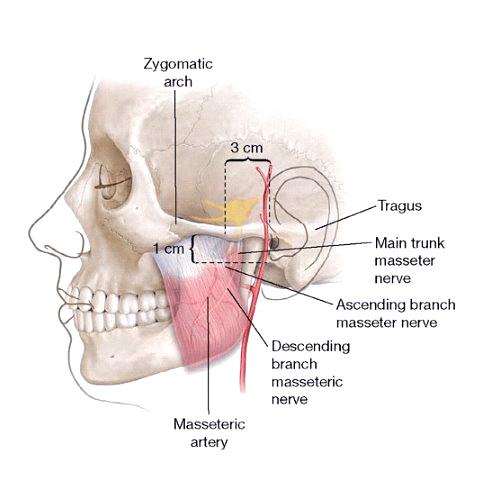 取咀嚼肌手術 / 咀嚼肌取出術 / 去咬肌手術