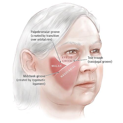 隱痕韌帶拉提拉皮術可施做部位