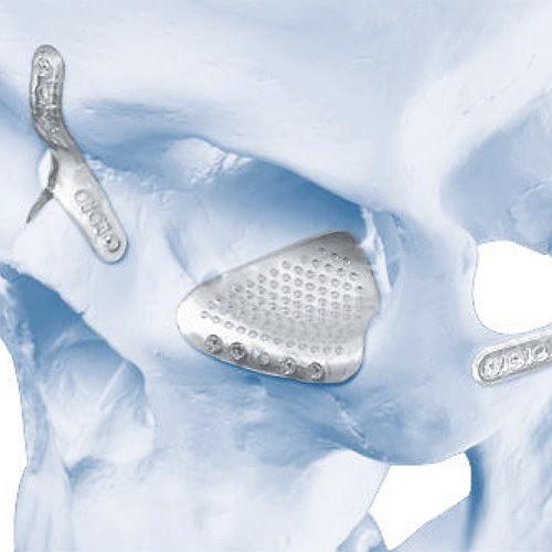 可吸收骨釘骨板適合用在顴骨內推手術嗎?