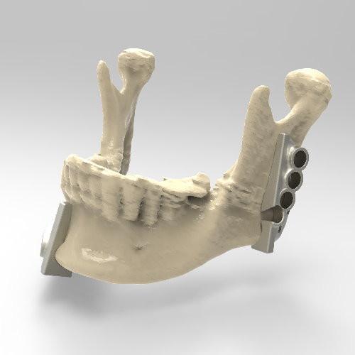 3D導航削骨導板為何?削骨達人線上解惑