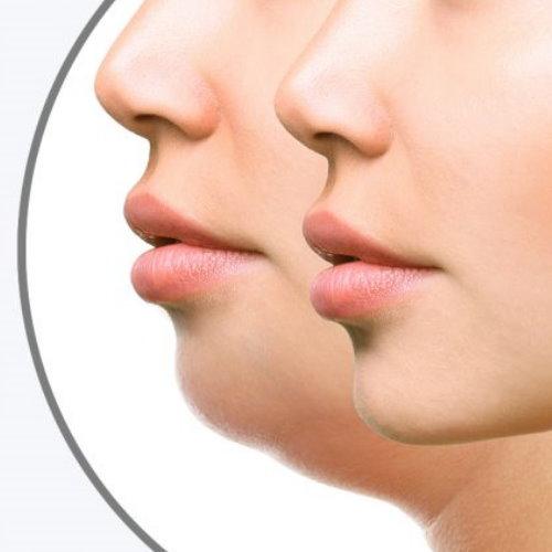 臉部抽脂瘦臉手術介紹