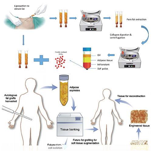 自體脂肪移植前後照片比對,2020自體脂肪移植個案分析