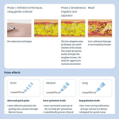 微粹脂二代水刀抽脂 手術前後比對個案分析