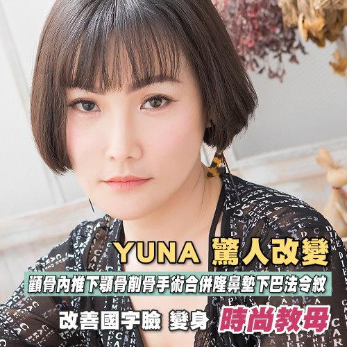 告別國字臉,40歲Yuna的驚人改變術後變身時尚教母