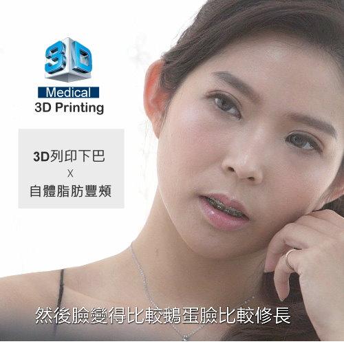 3D列印下巴手術合併自體脂肪豐頰,Kate超自然系下巴與臉部輪廓柔化