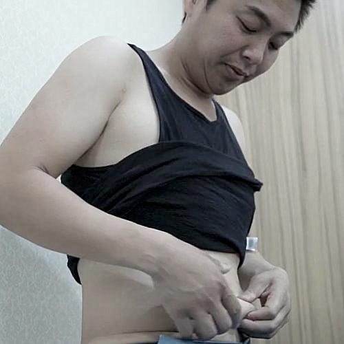 腹部環抽Vaser抽脂自體脂肪補臉後,原本鍛鍊的腹肌終於出現了