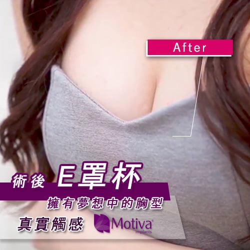 Motiva魔滴腋下內視鏡隆乳手術,網拍女模Nana的魔滴隆乳手術日記