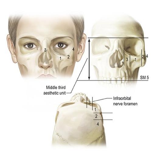 人工骨及Goretex墊顴骨蘋果肌貴婦手術