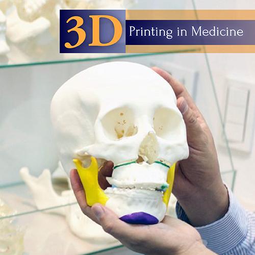 3D列印墊顴骨蘋果肌貴婦手術