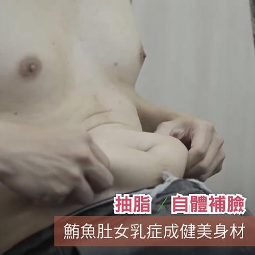 Lucifer改善鮪魚肚女乳症,腹部環抽胸部抽脂臉部自體脂肪補淚溝手術