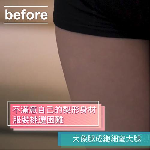 大腿環抽Vaser2 2抽脂手術,象腿變身蜜大腿肉肉腿改善計畫