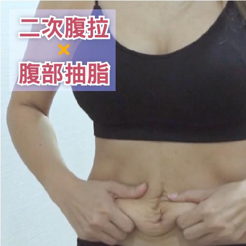 二次腹部拉皮移肚臍加腹腰環抽雕塑,CoCo生三胎產後腹部肚子鬆弛的大改變
