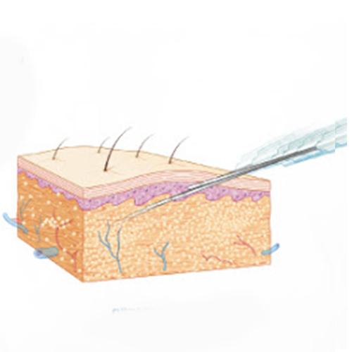 異體真皮粉注射療程前後注意須知
