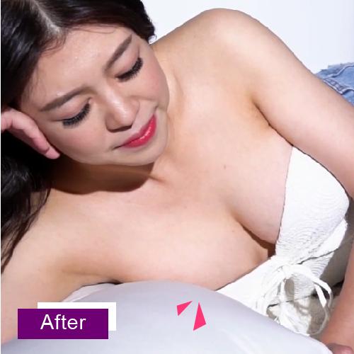 Motiva魔滴隆乳男性化胸部飛機場逆轉勝,女性曲線玩美胸型後天再造
