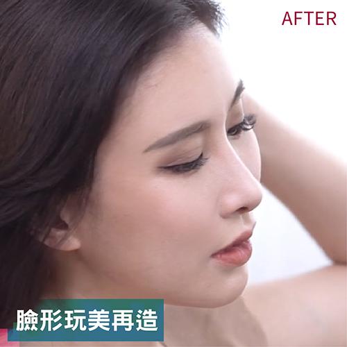 長方形臉型削骨手術調整,KK女皇蜜蜜臉形玩美比例再製
