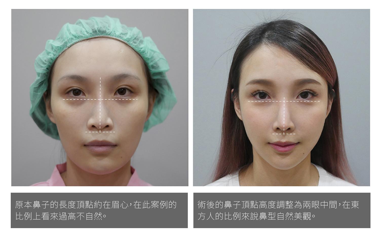 鼻整形美感,隆鼻美感,隆鼻手術五官比例,二次隆鼻,隆鼻失敗,隆鼻做壞