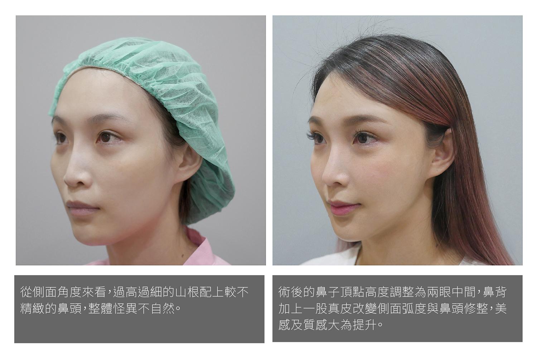 美女隆鼻,鼻整形權威,二次鼻整形,隆鼻失敗重做推薦