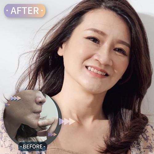 手術失敗假體形狀明顯,二次3D列印墊下巴手術客製化自然臉型
