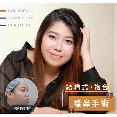 塌鼻朝天鼻整形手術,重建後改善鼻中膈彎曲不只自然美觀呼吸也順暢