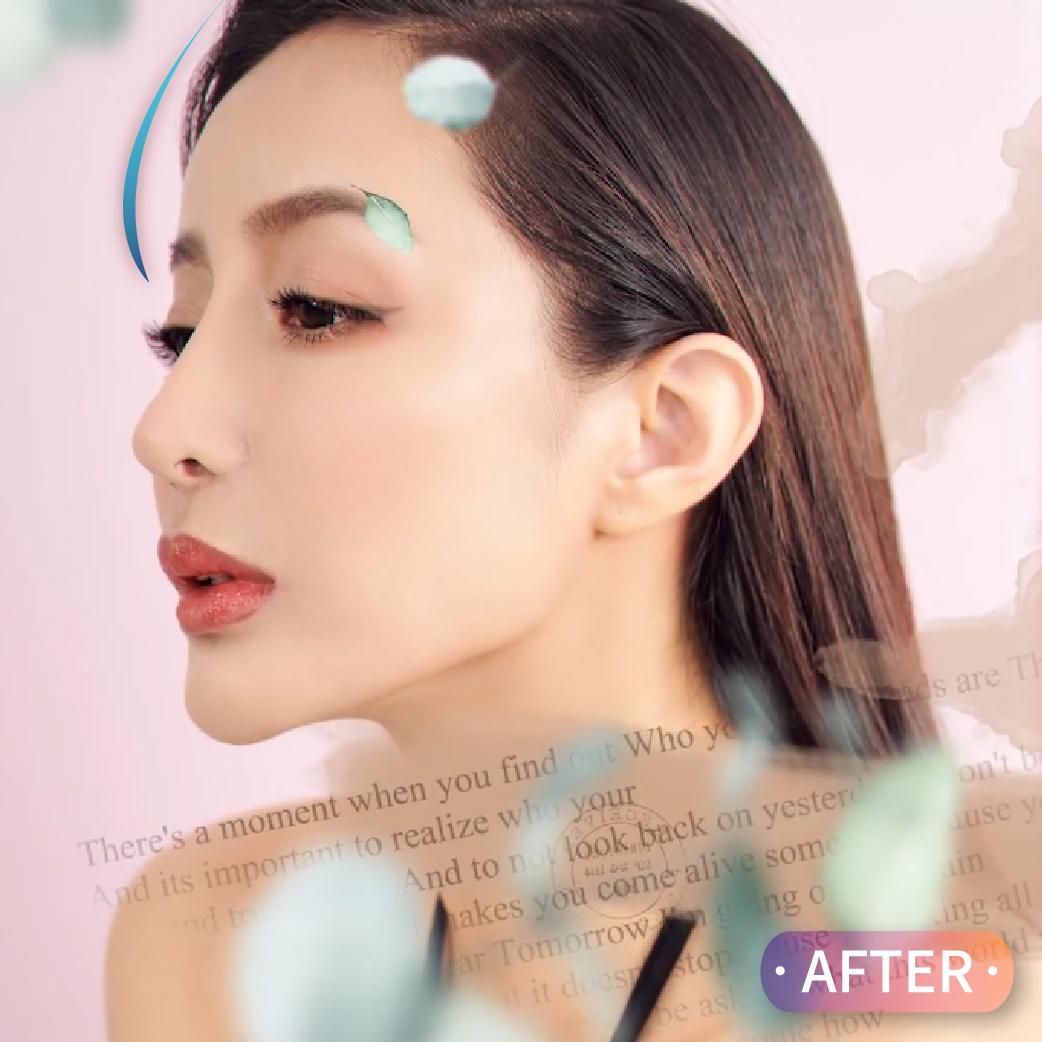 韓系內視鏡卡麥拉Goretex額頭墊片手術,改善額頭夫妻宮凹陷不夠飽滿問題