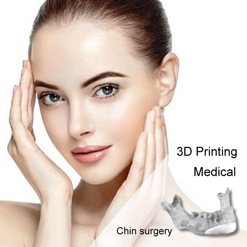 全3D列印墊下巴手術