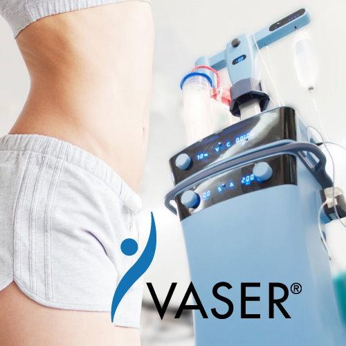 Vaser2.2威塑抽脂